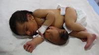 印度女婴胃上长出第二个脑袋