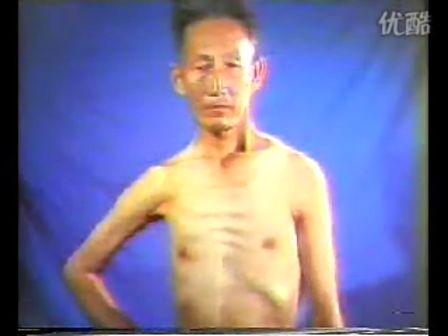 单基因病-进行性肌营养不良