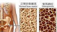 真相了! 頸椎病、腰間盤突出到底要不要吃鈣片!