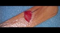 博康泰VISTA 軟組織上頜骨手術視頻3